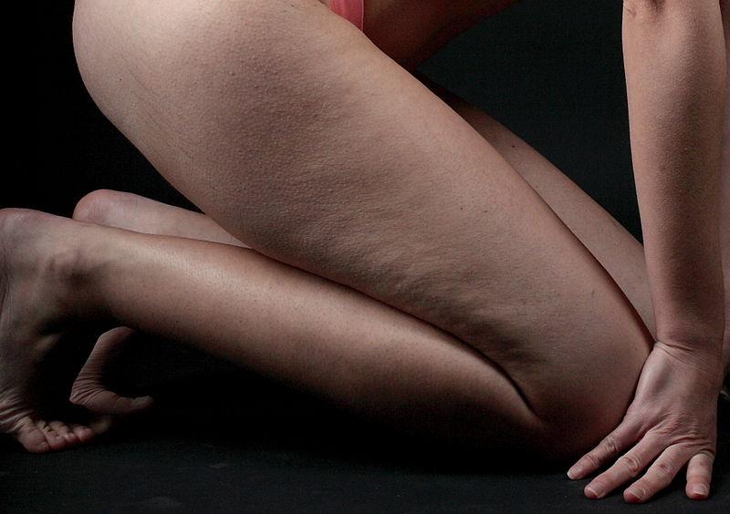 Cellulite-haut