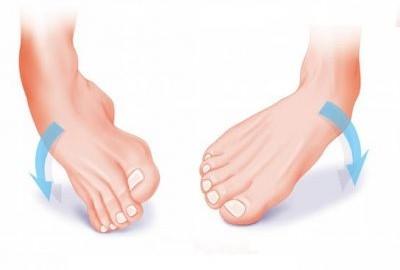 distorsione-di-caviglia