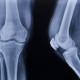 articolazione ginocchio