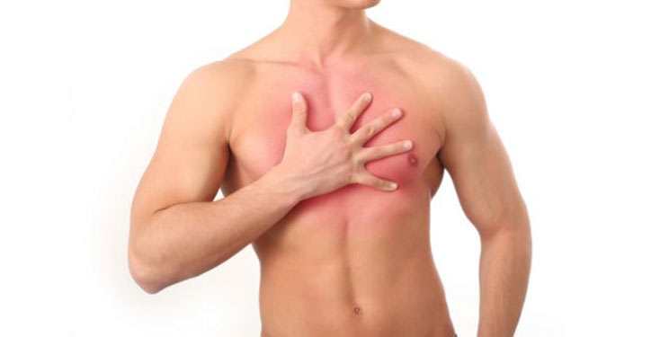 dolori-intercostali1