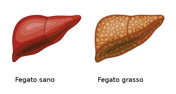 fegato-grasso